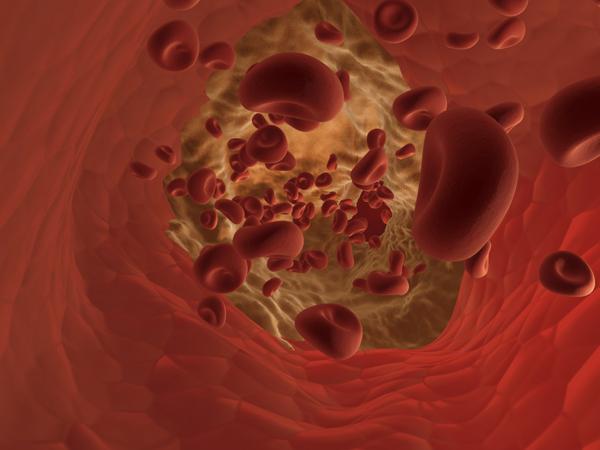 Experts stress need for drug treatments to control cholesterol