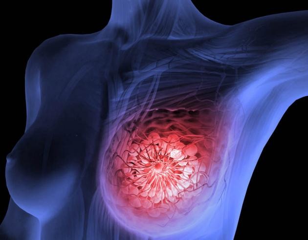 Joint research discovers 72 new genetic risks for breast cancer