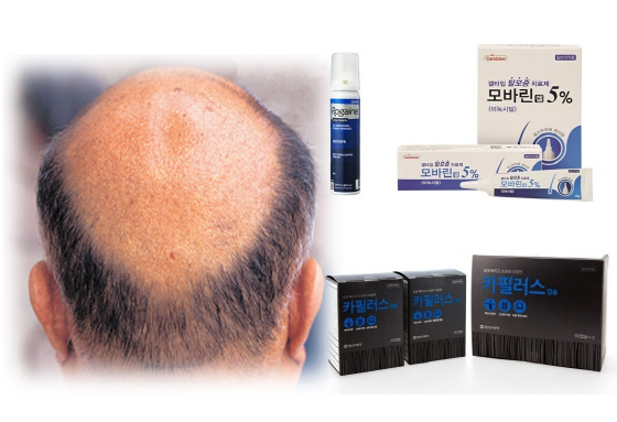 Competition heats up in hair loss treatment market