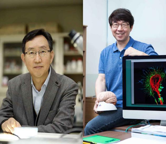 Researchers reveal producing mechanism of cerebral cell development-controlling protein