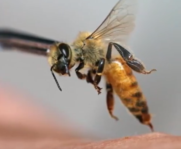 Skin-rejuvenating bee acupuncture may prove deadly