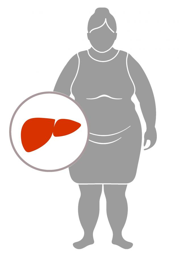 'Overweight hepatitis B patients have higher risk of liver cancer'