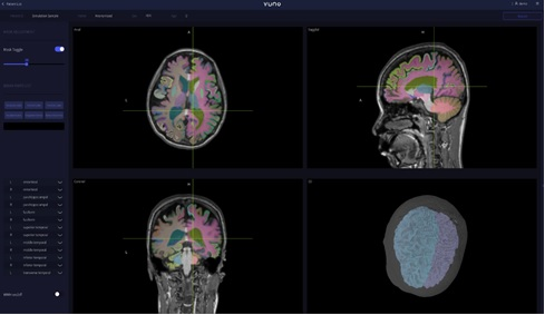 Vuno's dementia diagnosis medical device wins certification