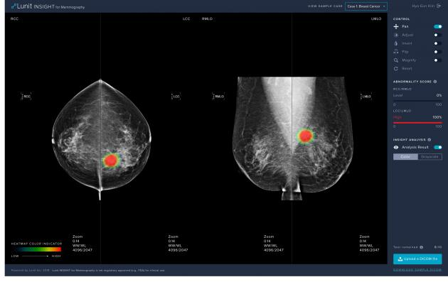 Lunit's AI-based software assisting breast cancer diagnosis wins regulatory nod