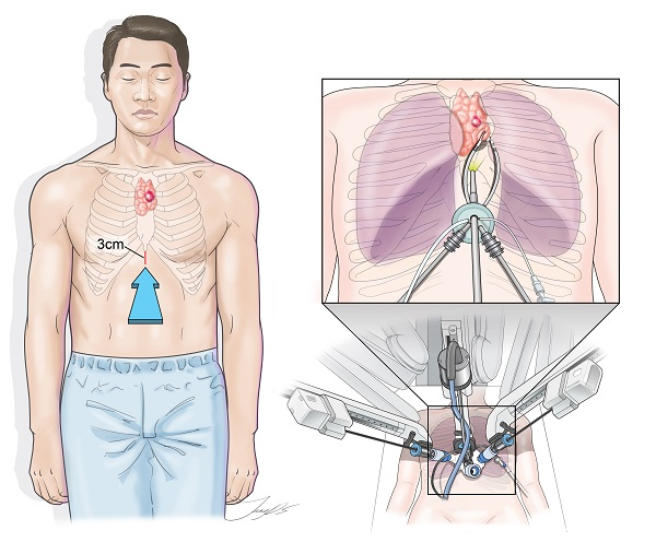 Korean doctors report 1st single-port robotic chest surgery