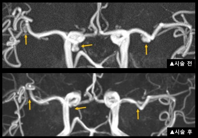 AMC team treats brain aneurysms with one coil embolization