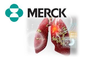 Merck's Keytruda extends lung cancer survival in pivotal P3 trial