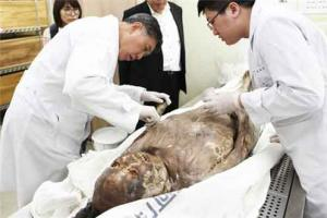 Researchers find lung parasite in a Joseon-era mummy